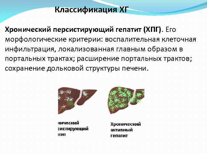 Классификация ХГ Хронический персистирующий гепатит (ХПГ). Его морфологические критерии: воспалительная клеточная инфильтрация, локализованная главным
