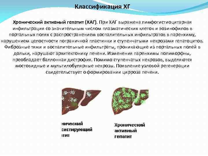 Классификация ХГ Хронический активный гепатит (ХАГ). При ХАГ выражена лимфогистиоцитарная инфильтрация со значительным числом