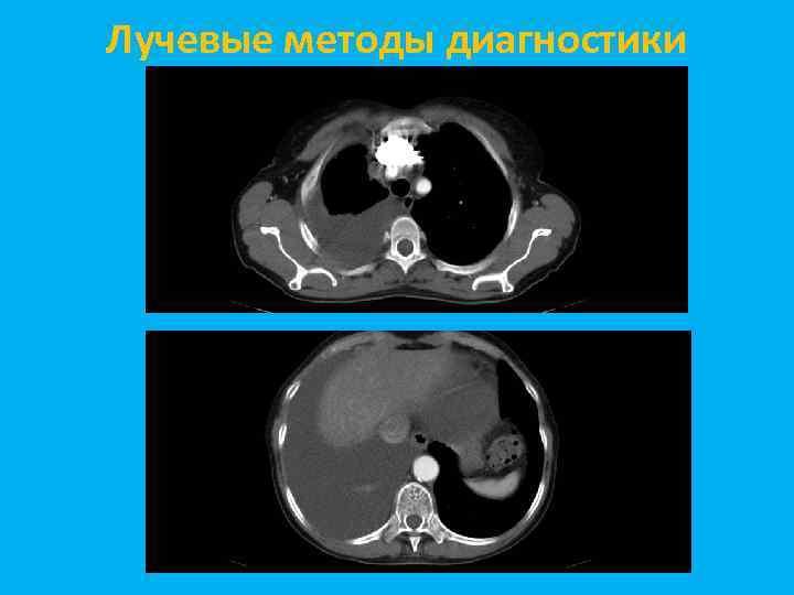 Лучевые методы диагностики