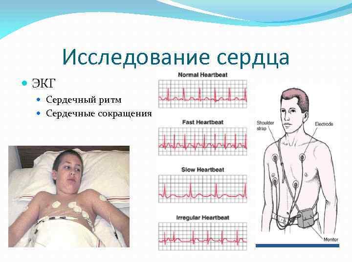 Исследование сердца ЭКГ Сердечный ритм Сердечные сокращения