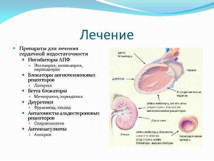Лечение Препараты для лечения сердечной недостаточности Ингибиторы АПФ Эналоприл, лизиноприл, периндоприл Блокаторы ангиотензиновых рецепторов