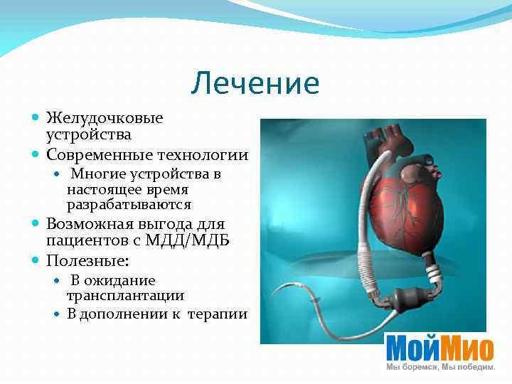 Лечение Желудочковые устройства Cовременные технологии Многие устройства в настоящее время разрабатываются Возможная выгода для