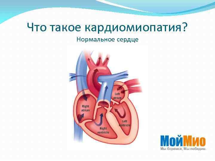 Что такое кардиомиопатия? Нормальное сердце