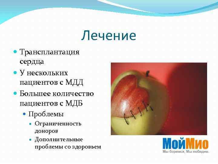 Лечение Трансплантация сердца У нескольких пациентов с МДД Большее количество пациентов с МДБ Проблемы