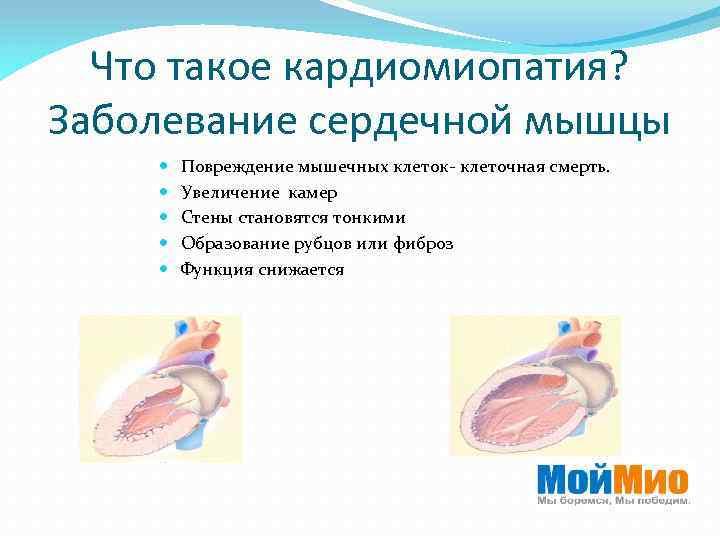 Что такое кардиомиопатия? Заболевание сердечной мышцы Повреждение мышечных клеток- клеточная смерть. Увеличение камер Стены