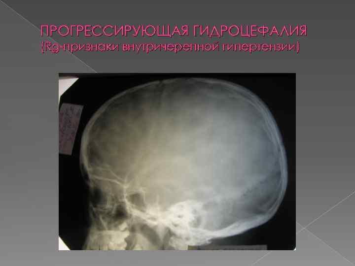 Признаки внутричерепной гипертензии на рентгенограмме