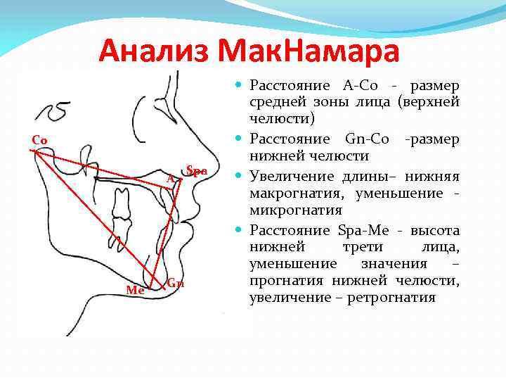 Анализ Мак. Намара Co A Me Gn Spa Расстояние А-Со - размер средней зоны