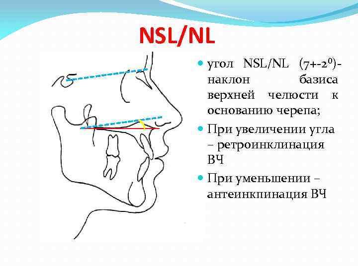 NSL/NL угол NSL/NL (7+-2⁰)наклон базиса верхней челюсти к основанию черепа; При увеличении угла –