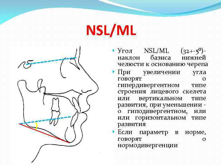 NSL/ML Угол NSL/ML (32+-5⁰)- наклон базиса нижней челюсти к основанию черепа При увеличении угла