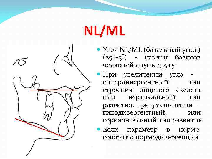 NL/ML Угол NL/ML (базальный угол ) (25+-3⁰) - наклон базисов челюстей друг к другу
