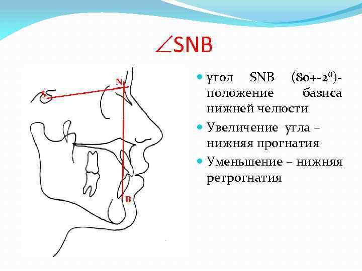 SNB угол SNB (80+-2⁰)- положение базиса нижней челюсти Увеличение угла – нижняя прогнатия