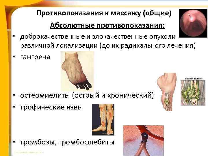 Противопоказания к массажу (общие) Абсолютные противопоказания: • доброкачественные и злокачественные опухоли различной локализации (до