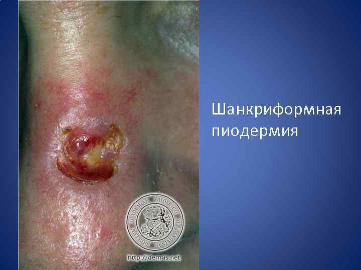 Пиодермии дерматовенерология картинки