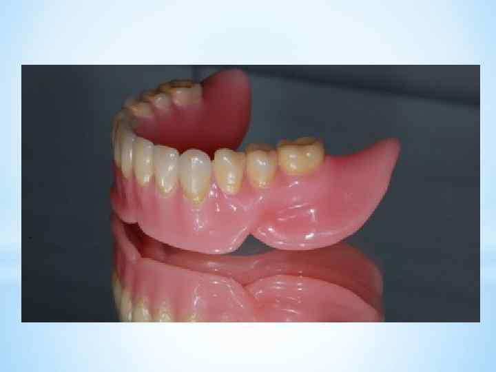 Ретенционная зона зуба это