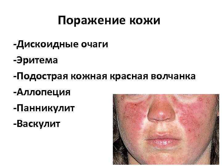 Поражение кожи -Дискоидные очаги -Эритема -Подострая кожная красная волчанка -Аллопеция -Панникулит -Васкулит