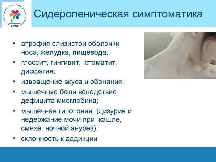 Сидеропеническая симптоматика • атрофия слизистой оболочки носа, желудка, пищевода, • глоссит, гингивит, стоматит, дисфагия;