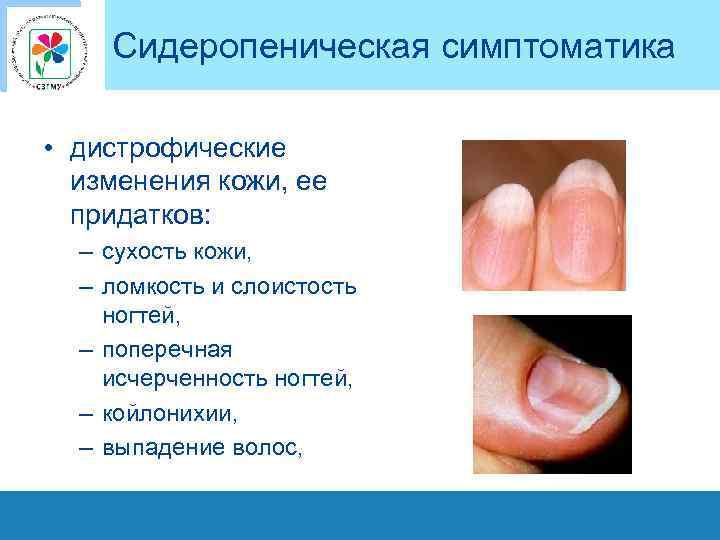 Сидеропеническая симптоматика • дистрофические изменения кожи, ее придатков: – сухость кожи, – ломкость и