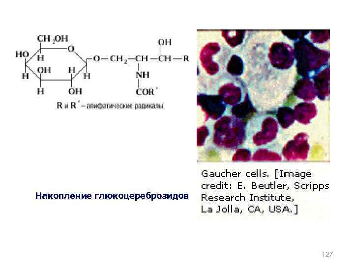 Накопление глюкоцереброзидов 127