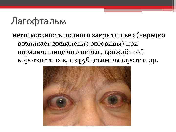 Лагофтальм невозможность полного закрытия век (нередко возникает воспаление роговицы) при параличе лицевого нерва ,