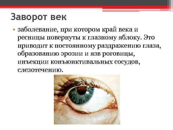 Заворот век • заболевание, при котором край века и ресницы повернуты к глазному яблоку.