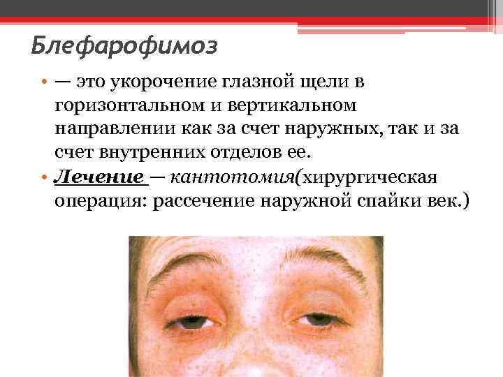 Блефарофимоз • — это укорочение глазной щели в горизонтальном и вертикальном направлении как за