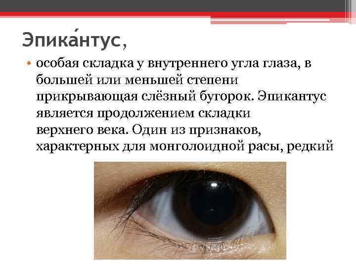 Эпика нтус, • особая складка у внутреннего угла глаза, в большей или меньшей степени