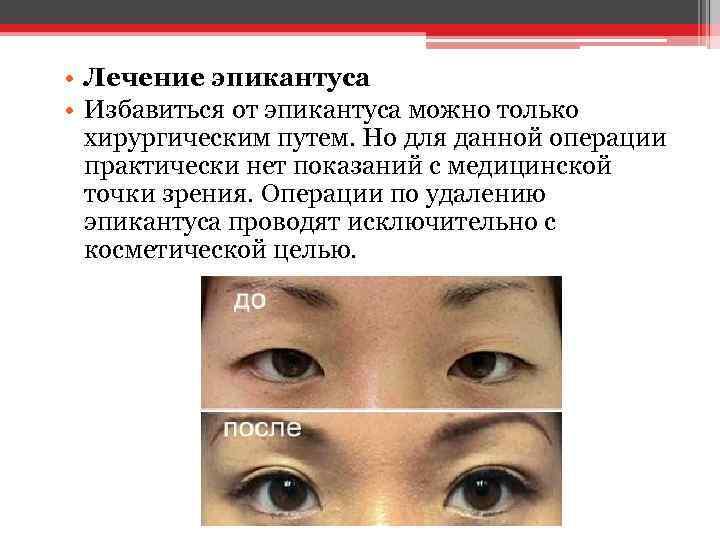 • Лечение эпикантуса • Избавиться от эпикантуса можно только хирургическим путем. Но для