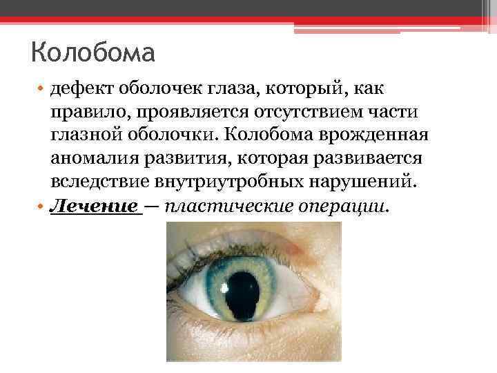 Колобома • дефект оболочек глаза, который, как правило, проявляется отсутствием части глазной оболочки. Колобома