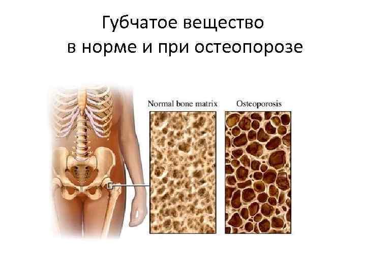 Губчатое вещество в норме и при остеопорозе