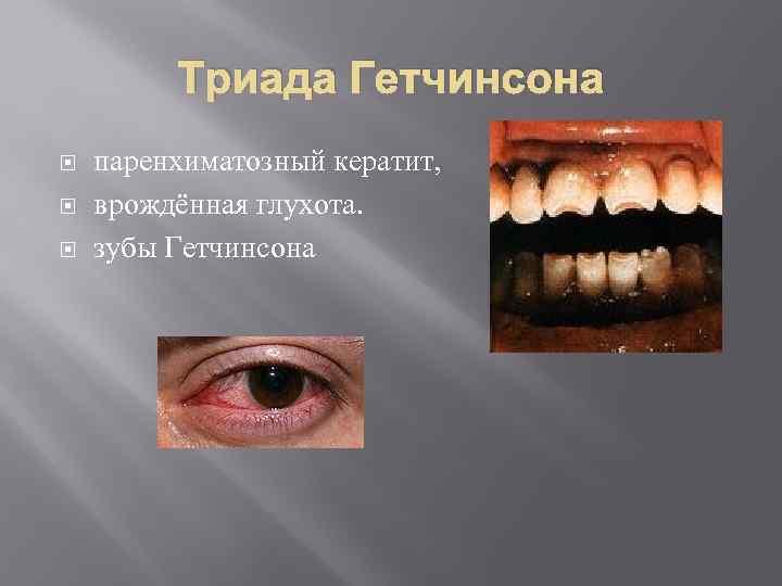 симптомы врожденного сифилиса