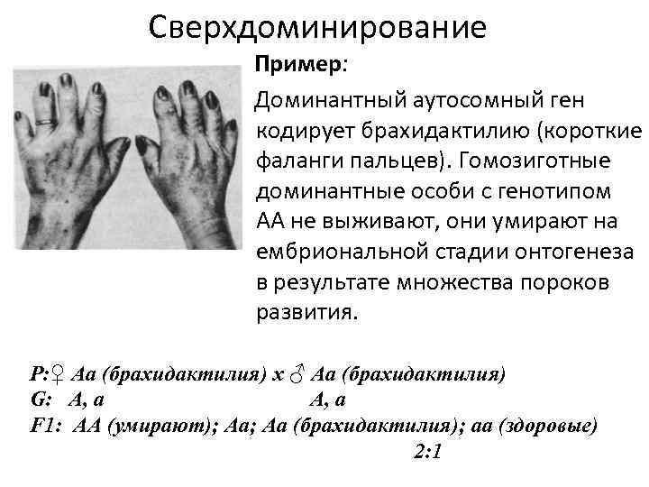 Сверхдоминирование Пример: Доминантный аутосомный ген кодирует брахидактилию (короткие фаланги пальцев). Гомозиготные доминантные особи с