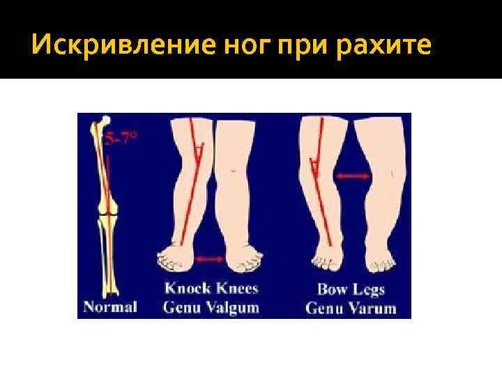 Искривление ног у детей при рахите
