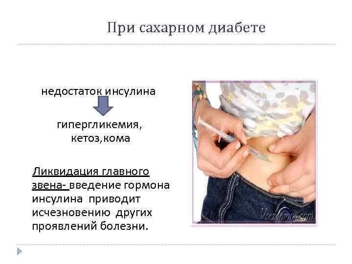 При сахарном диабете предлагаю инсулин