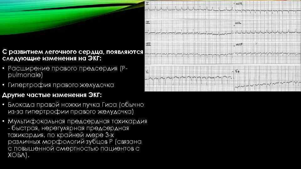 С развитием легочного сердца, появляются следующие изменения на ЭКГ: • Расширение правого предсердия (Ppulmonale)