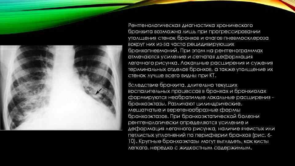 Рентгенологическая диагностика хронического бронхита возможна лишь при прогрессировании утолщения стенок бронхов и очагов пневмосклероза