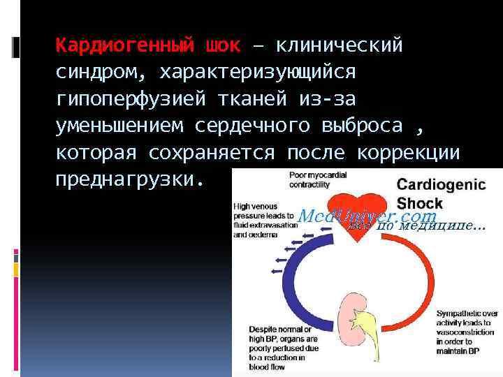 Кардиогенный шок – клинический синдром, характеризующийся гипоперфузией тканей из-за уменьшением сердечного выброса , которая