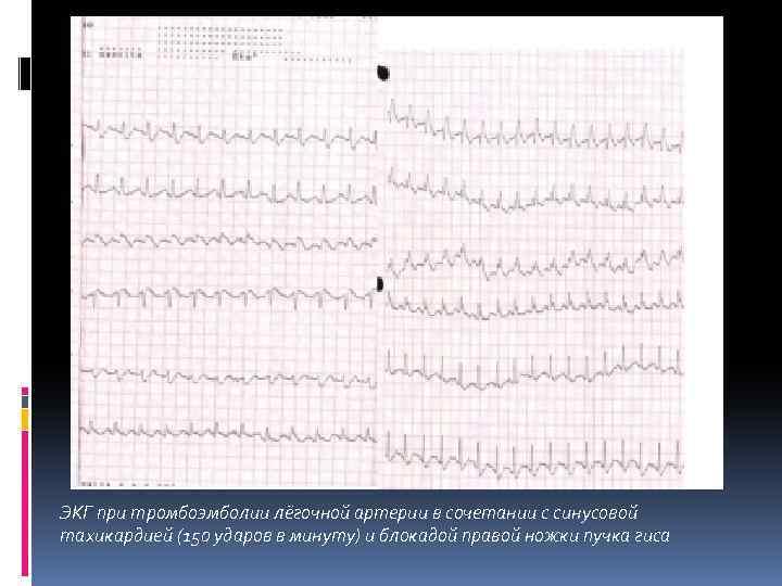 ЭКГ при тромбоэмболии лёгочной артерии в сочетании с синусовой тахикардией (150 ударов в минуту)