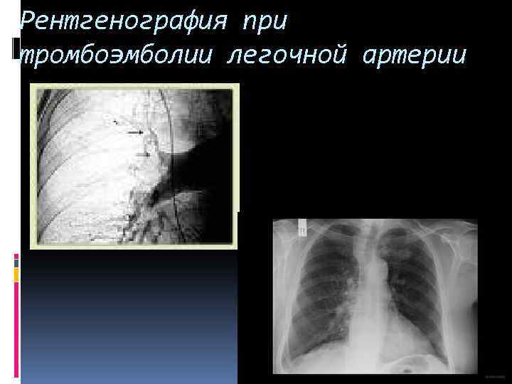 Рентгенография при тромбоэмболии легочной артерии