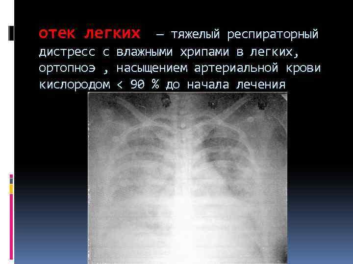 отек легких — тяжелый респираторный дистресс с влажными хрипами в легких, ортопноэ , насыщением