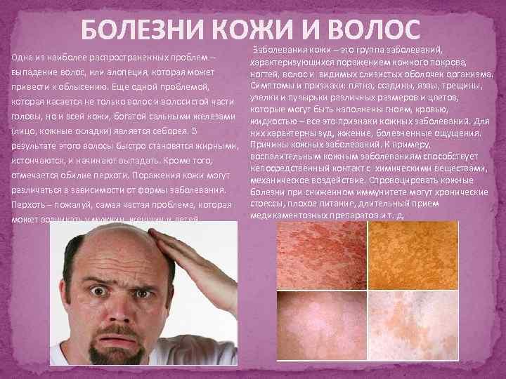 БОЛЕЗНИ КОЖИ И ВОЛОС Одна из наиболее распространенных проблем – выпадение волос, или алопеция,