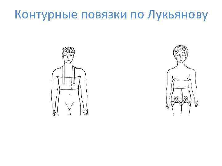 Контурные повязки по Лукьянову