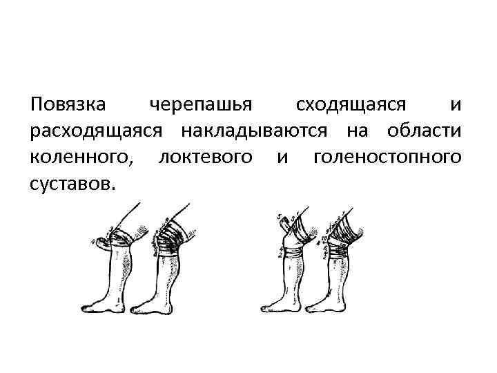 Повязка черепашья сходящаяся и расходящаяся накладываются на области коленного, локтевого и голеностопного суставов.