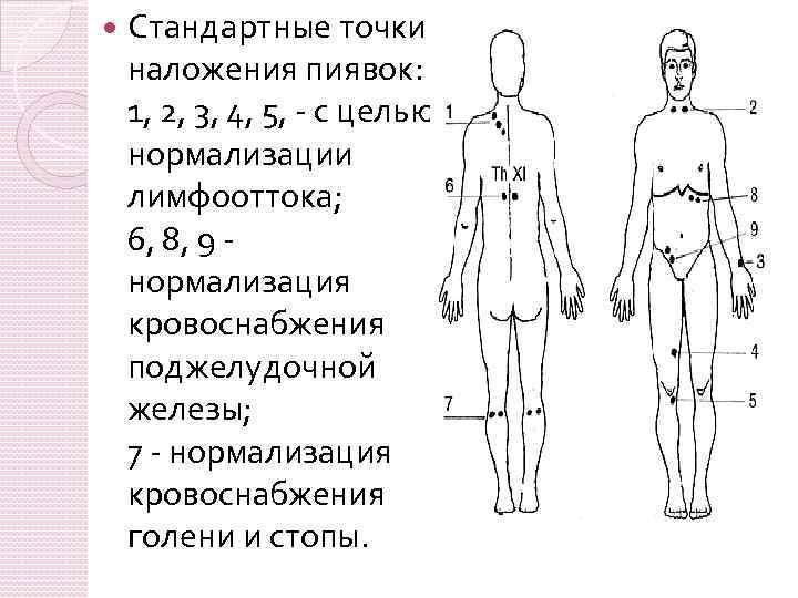 Пиявки схема постановки при похудении