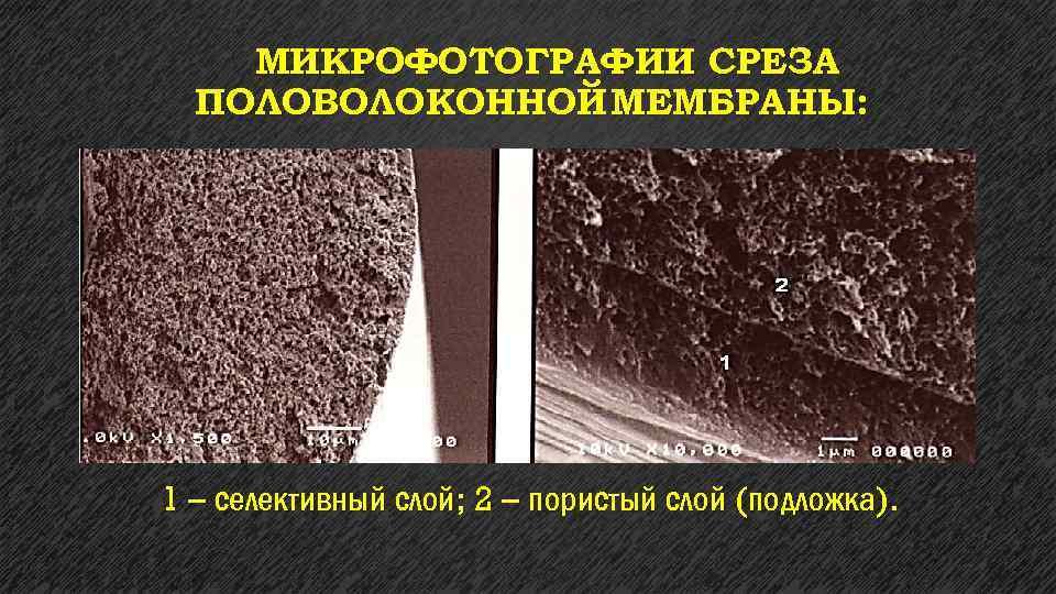 МИКРОФОТОГРАФИИ СРЕЗА ПОЛОВОЛОКОННОЙ МЕМБРАНЫ: 1 – селективный слой; 2 – пористый слой (подложка).