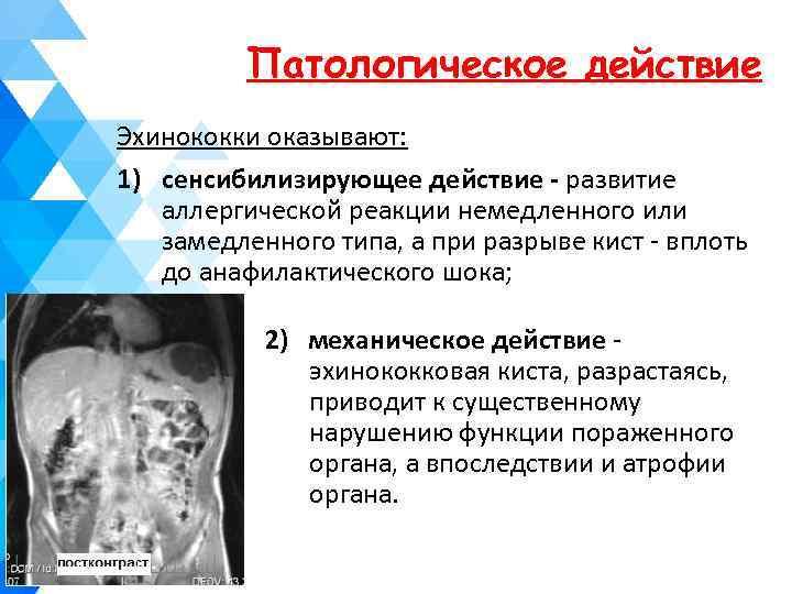 Патологическое действие Эхинококки оказывают: 1) сенсибилизирующее действие - развитие аллергической реакции немедленного или замедленного