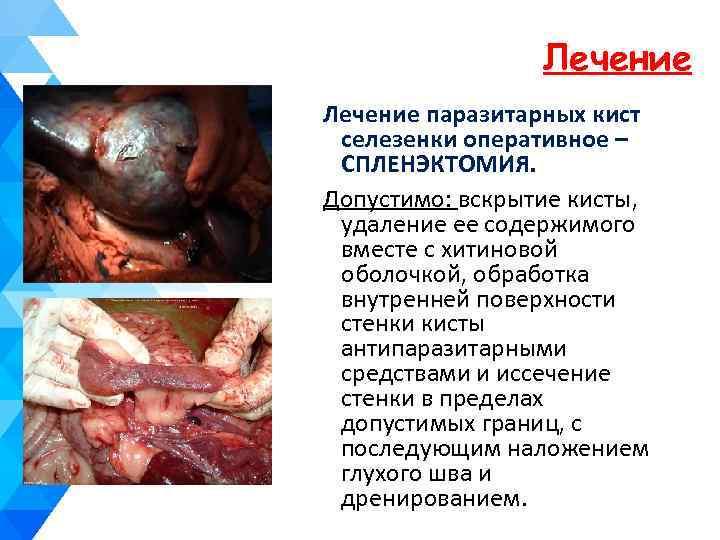 Лечение паразитарных кист селезенки оперативное – СПЛЕНЭКТОМИЯ. Допустимо: вскрытие кисты, удаление ее содержимого вместе