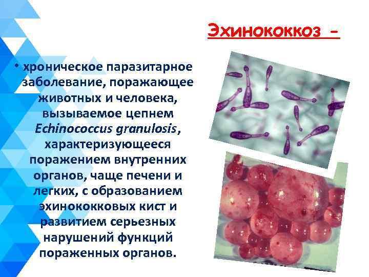 Эхинококкоз • хроническое паразитарное заболевание, поражающее животных и человека, вызываемое цепнем Echinococcus granulosis, характеризующееся
