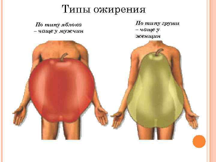 Типы ожирения По типу яблока – чаще у мужчин По типу груши – чаще