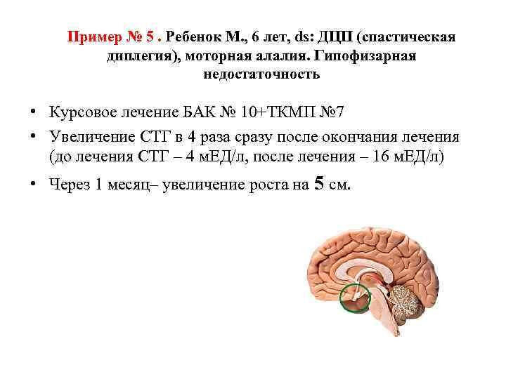Пример № 5. Ребенок М. , 6 лет, ds: ДЦП (спастическая диплегия), моторная алалия.