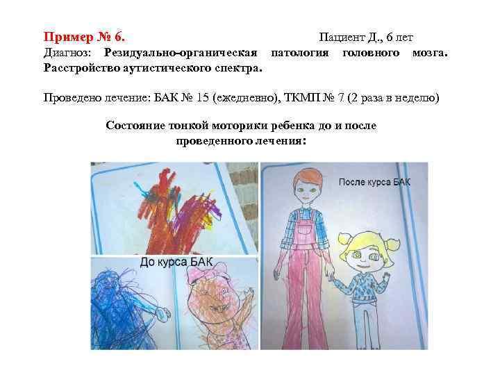 Пример № 6. Диагноз: Резидуально-органическая Расстройство аутистического спектра. Пациент Д. , 6 лет патология